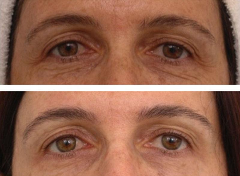Resurfacing Facial L 225 Ser Rejuvenecimiento Cl 237 Nica Casas